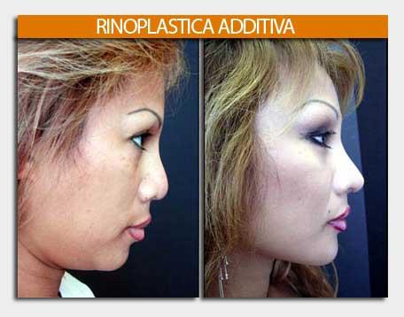 rinoplastica additiva